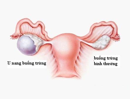 u nang buong trung